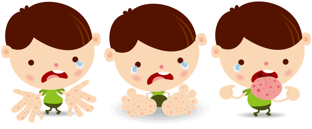 手足口病の症状