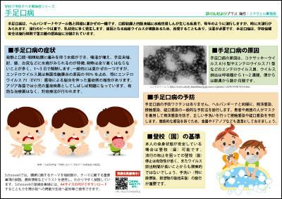 手足口病(学校で予防すべき感染症)-無料-画像-フリー