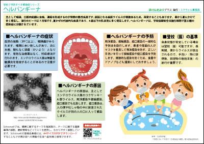 ヘルパンギーナ(学校で予防すべき感染症)-無料-画像-フリー