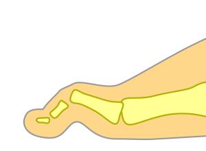 曲がった足の指-ハンマートゥ