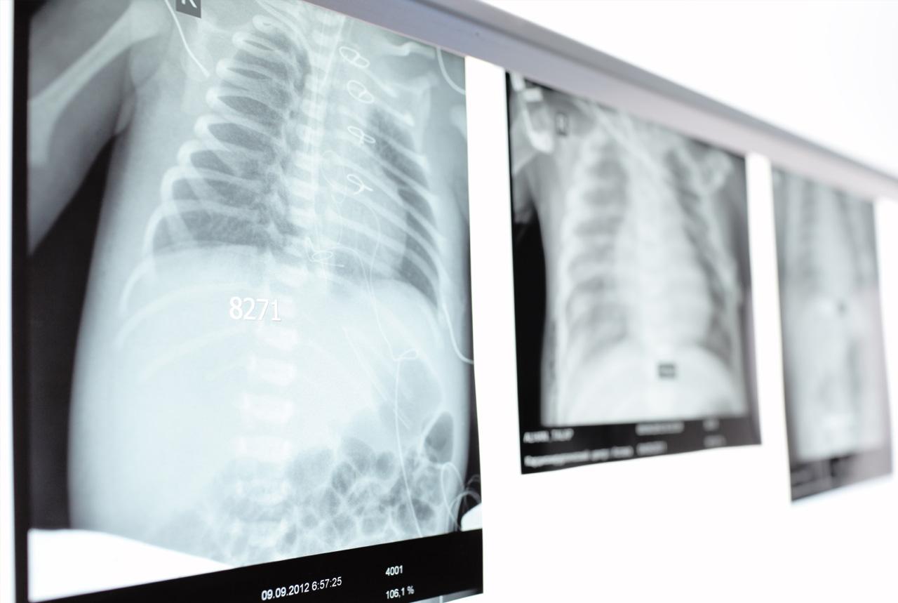 マイコプラズマ肺炎広がる、過去10年で2011年に次ぐ2番目の多さ