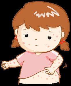 疥癬(かいせん)の症状