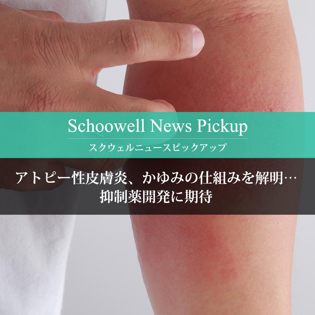 アトピー性皮膚炎、かゆみの仕組みを解明…抑制薬開発に期待