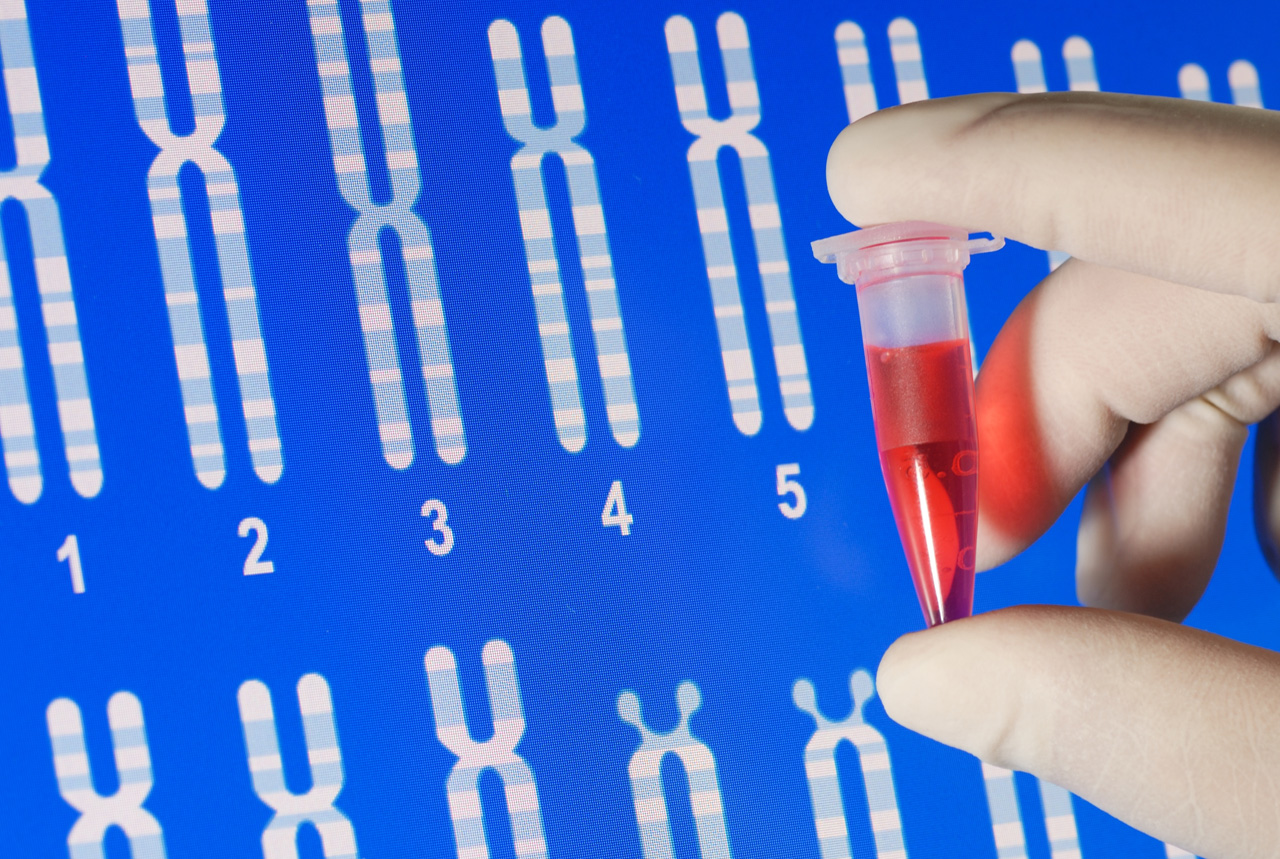 感染症診断、現場で正確 日本板硝子が小型の遺伝子検査機