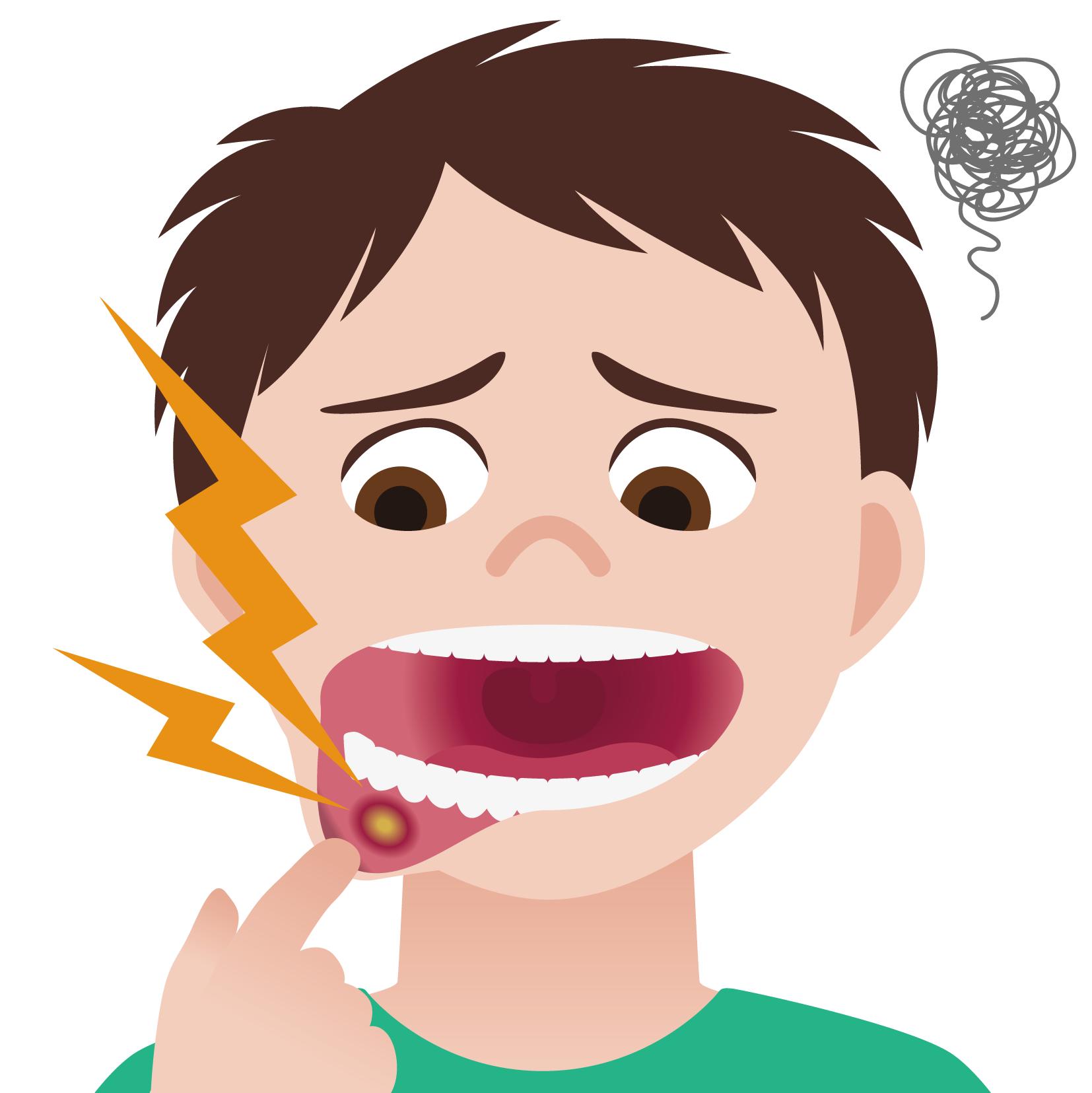 単純ヘルペス感染症 – 学校で予防すべき感染症シリーズ ...