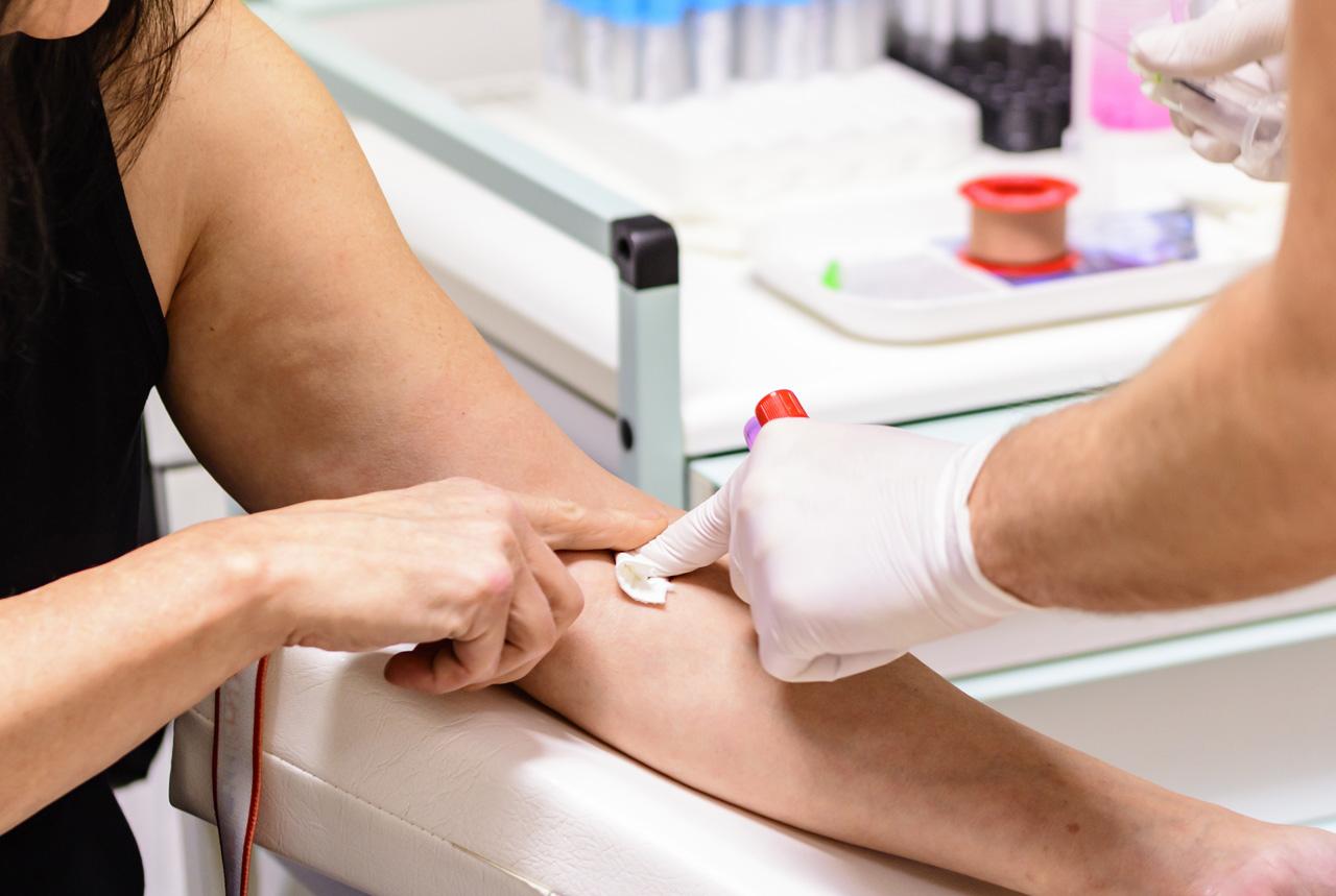 肝炎の検査