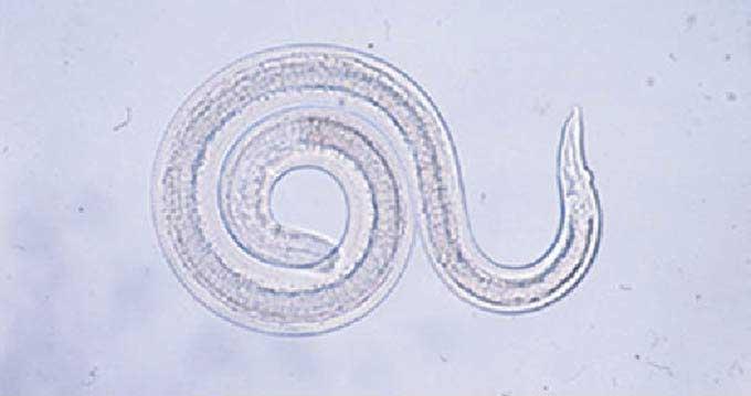 アライグマ回虫の幼虫-国立感染症研究所