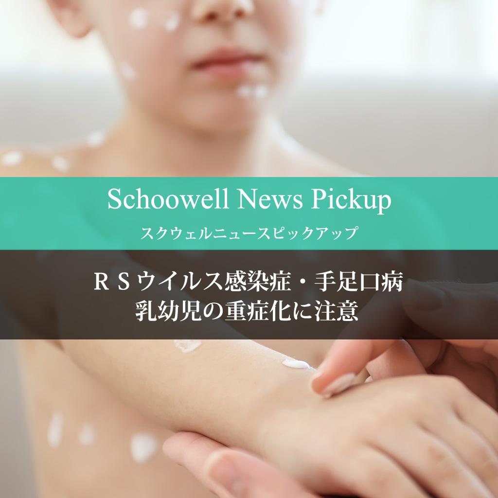 RSウイルス感染症・手足口病、乳幼児の重症化に注意