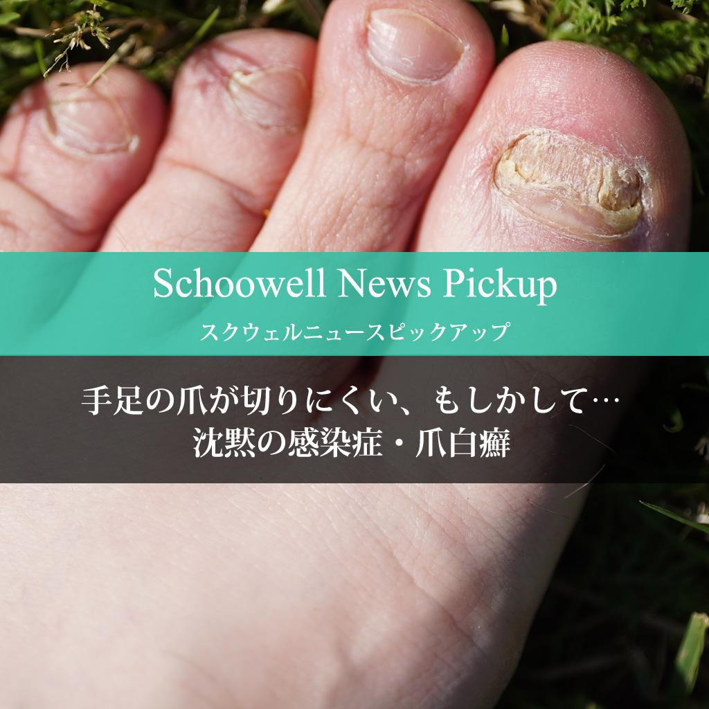 手足の爪が切りにくい、もしかして… 沈黙の感染症・爪白癬