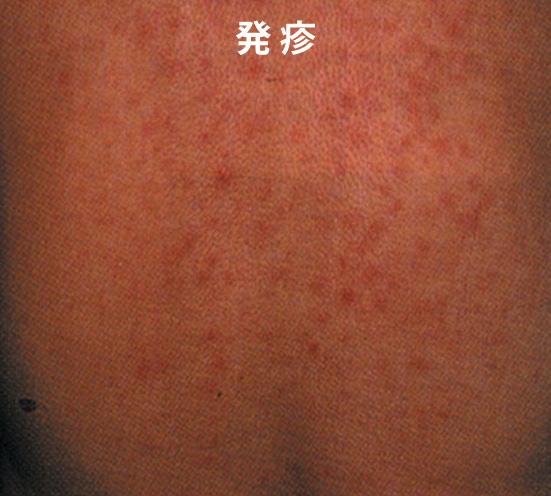 ツツガムシ病の症状