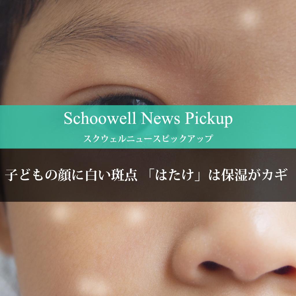 子どもの顔に白い斑点 「はたけ」は保湿がカギ