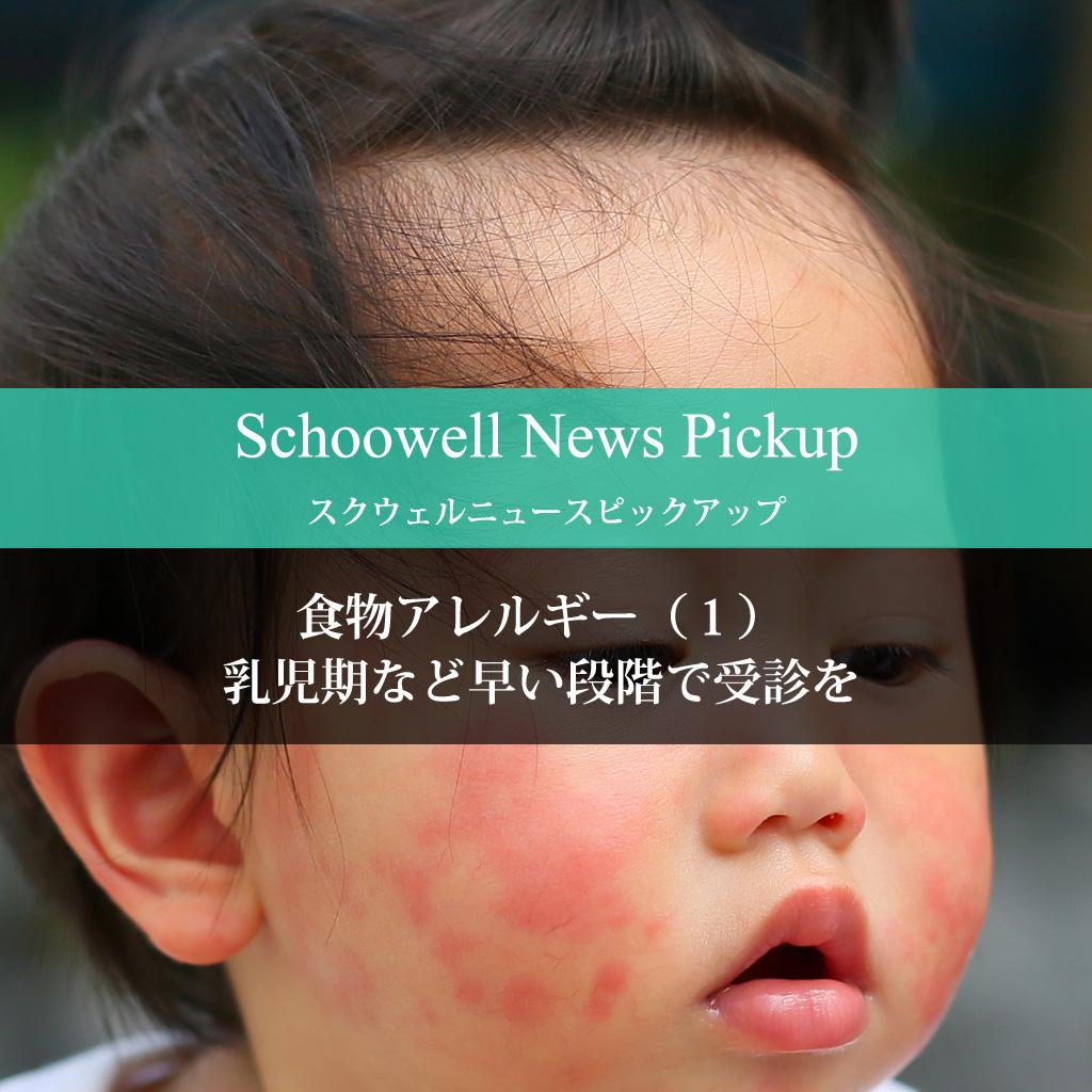 食物アレルギー(1) 乳児期など早い段階で受診を