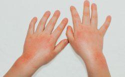 子どものアトピー性皮膚炎、治すには炎症対策がポイント!薬の使い方も