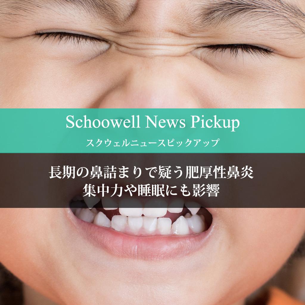 長期の鼻詰まりで疑う肥厚性鼻炎 集中力や睡眠にも影響