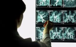 脳のレントゲン