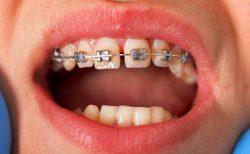歯の矯正の画像