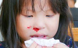 子どもの鼻血