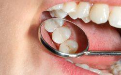 むし歯が1本もない小学生児童の方がむし歯になりやすい、東北大が調査